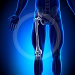 Femur Fractures After Motor Vehicle Accidents