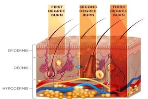 Types of Burn Degree