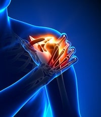 Shoulder Impingement Syndrome Personal Injury Claims