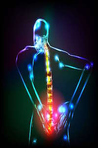 What is Radiculopathy as it Relates to Spinal Cord Injuries